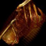 3D Lumbar Spine