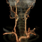 3D Neck Angiogram