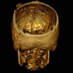3D Skull cavity with bullet and bone fragments